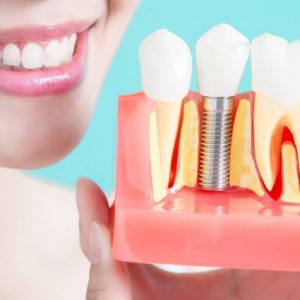 What It's Like Getting a Dental Implant