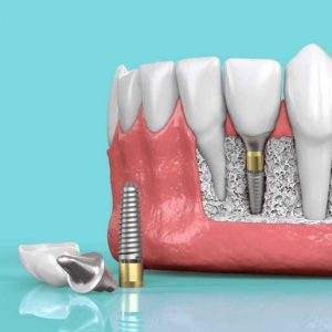 Why Should You Consider Getting A Dental Implant?